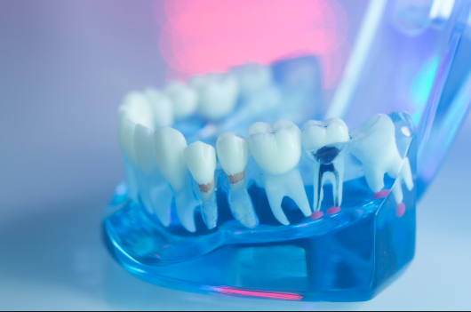 root canal Auckland