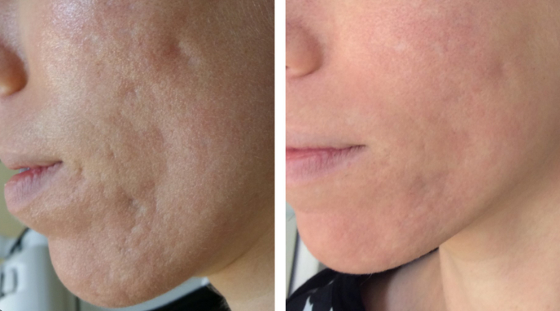 How Acne Skin Laser Treatment Keeps Your Face Acne-Free?
