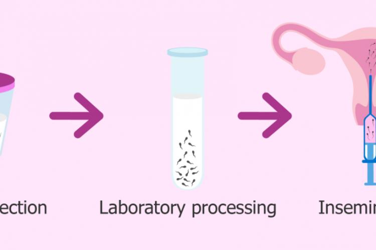 artificial insemination in gauteng