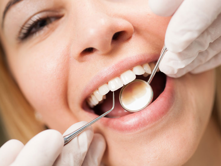 What Exactly Professional Dental Cleanings Can Give You